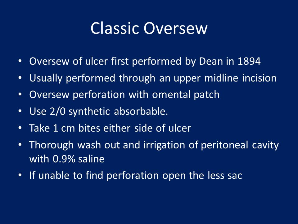 Classic Oversew Oversew of ulcer first performed by Dean in 1894