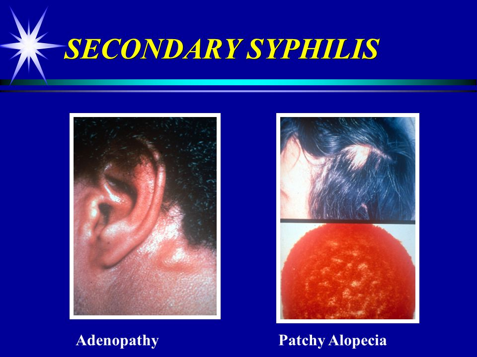 SECONDARY SYPHILIS Adenopathy Patchy Alopecia
