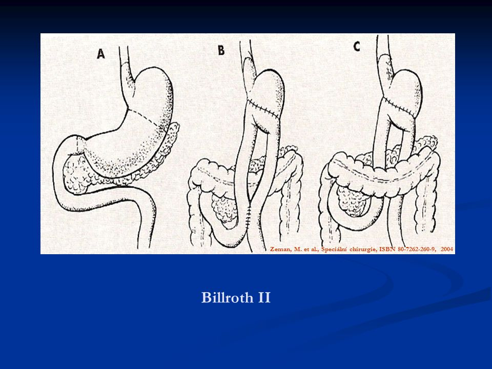 Zeman, M. et al., Speciální chirurgie, ISBN 80-7262-260-9, 2004