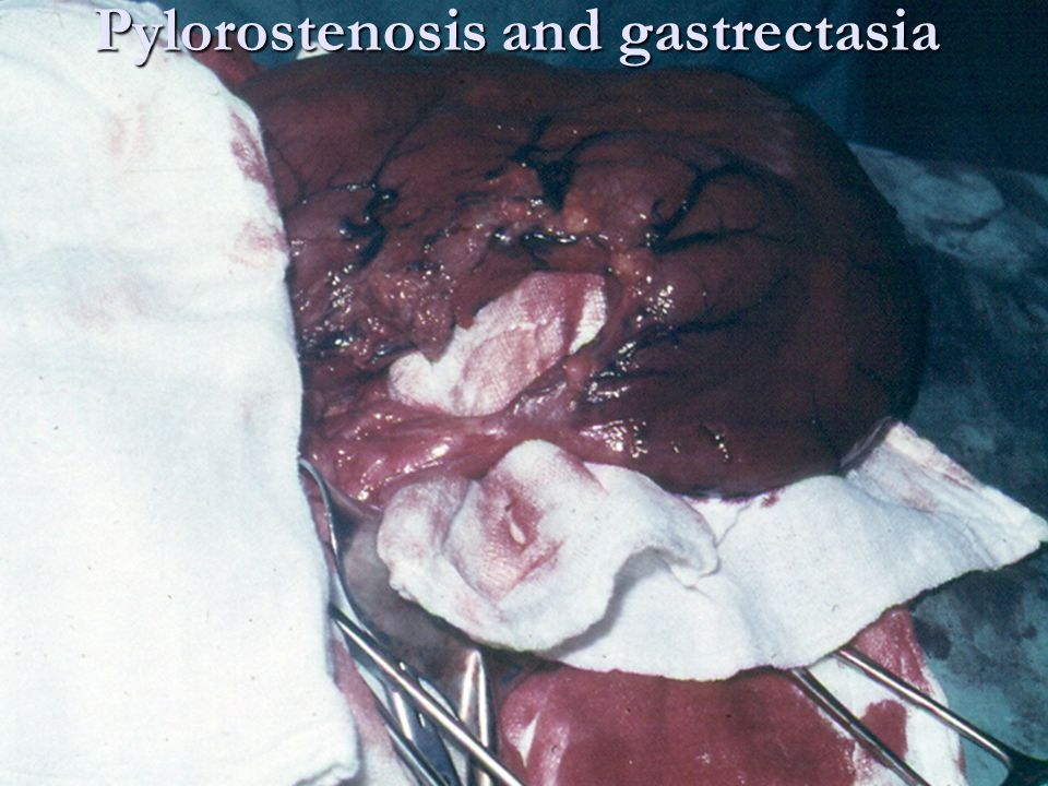 Pylorostenosis and gastrectasia