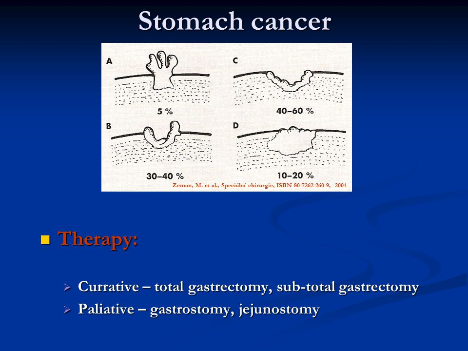 Stomach cancer Therapy: