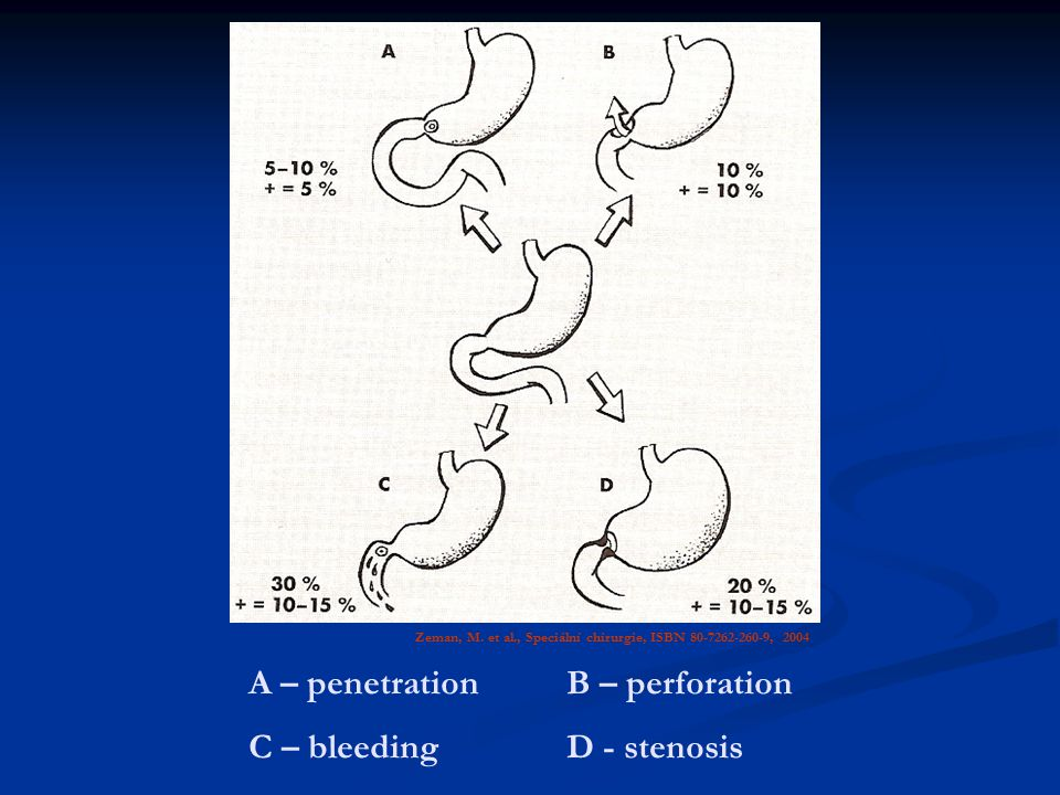 A – penetration B – perforation C – bleeding D - stenosis