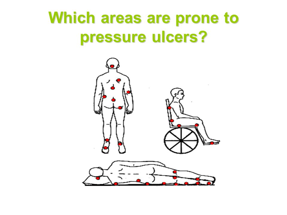 Which areas are prone to pressure ulcers