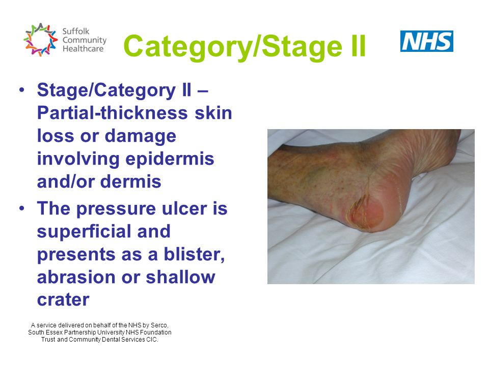 Category/Stage II Stage/Category II – Partial-thickness skin loss or damage involving epidermis and/or dermis.