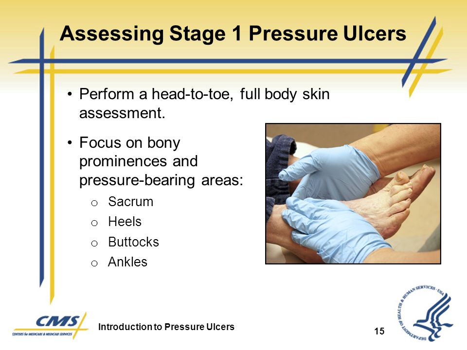 Assessing Stage 1 Pressure Ulcers