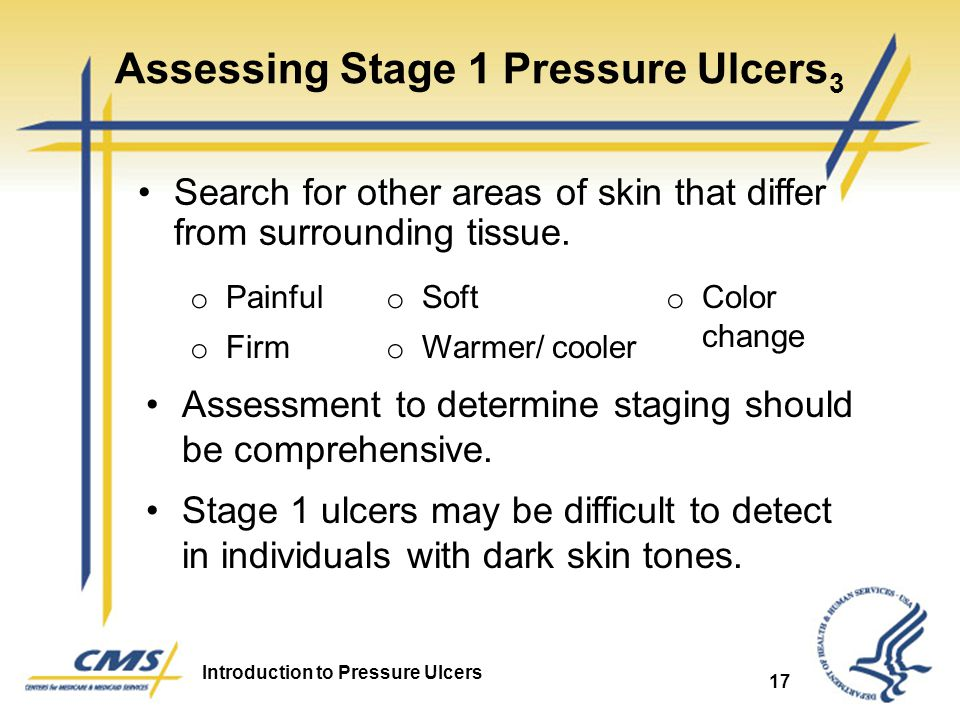 Assessing Stage 1 Pressure Ulcers3