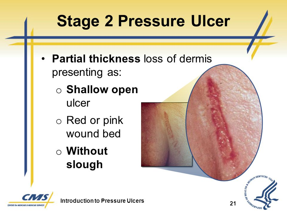 Stage 2 Pressure Ulcer Partial thickness loss of dermis presenting as: