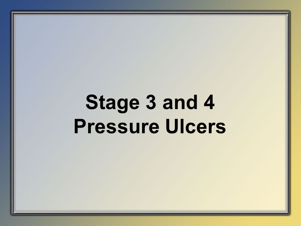 Stage 3 and 4 Pressure Ulcers