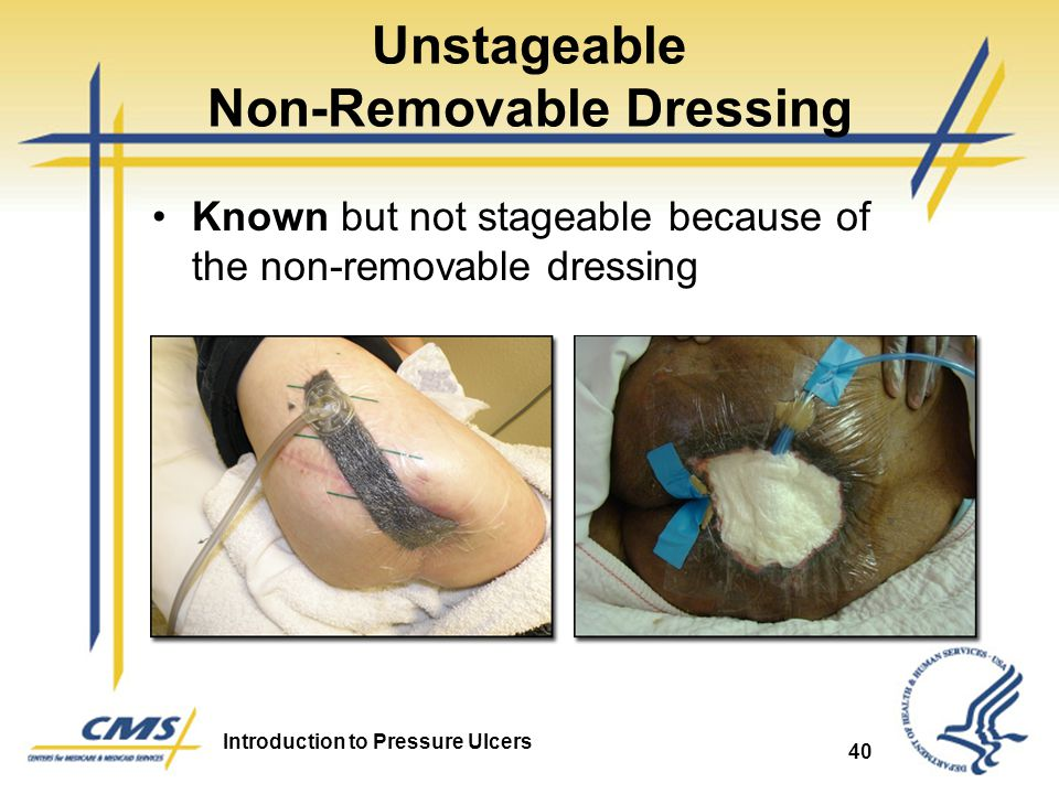 Unstageable Non-Removable Dressing