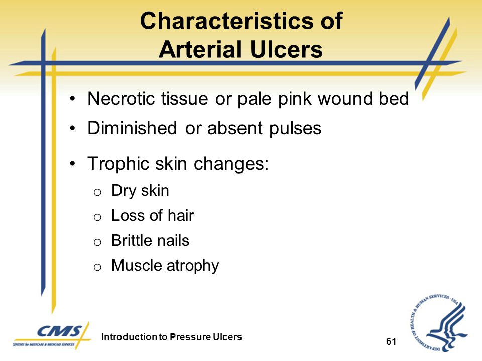 Characteristics of Arterial Ulcers