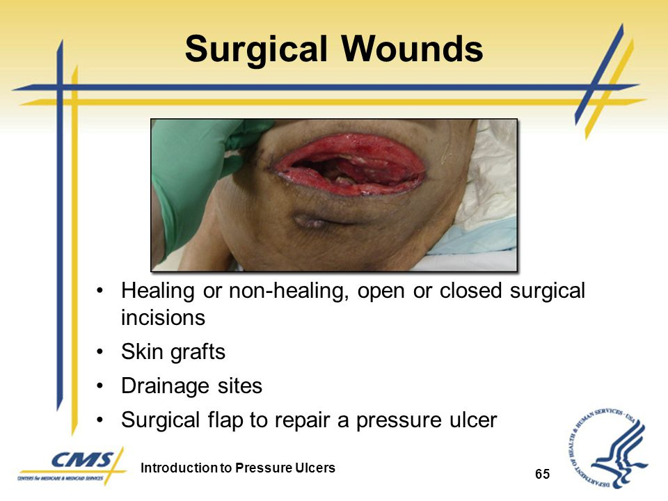Surgical Wounds Healing or non-healing, open or closed surgical incisions. Skin grafts. Drainage sites.