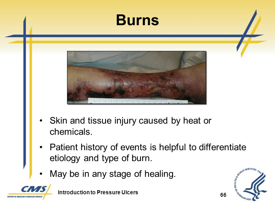 Burns Skin and tissue injury caused by heat or chemicals.