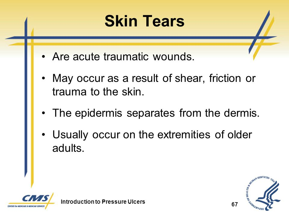 Skin Tears Are acute traumatic wounds.