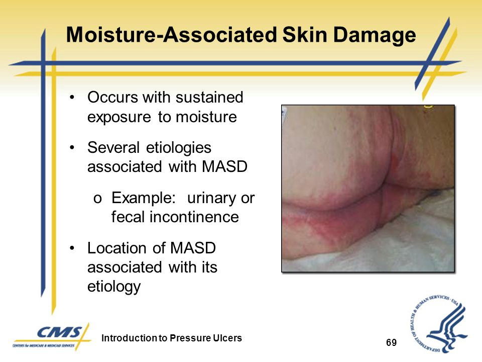 Moisture-Associated Skin Damage