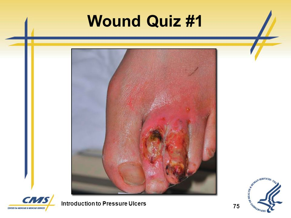Wound Quiz #1 Arterial Ulcer 75 75