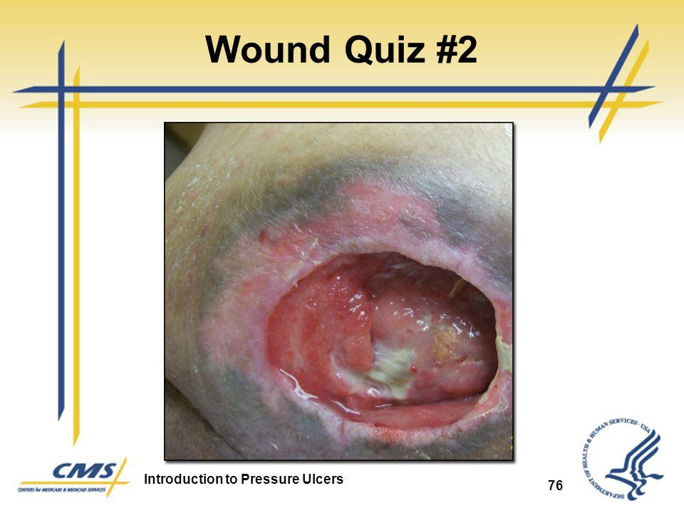 Wound Quiz #2 Pressure Ulcer 76 76