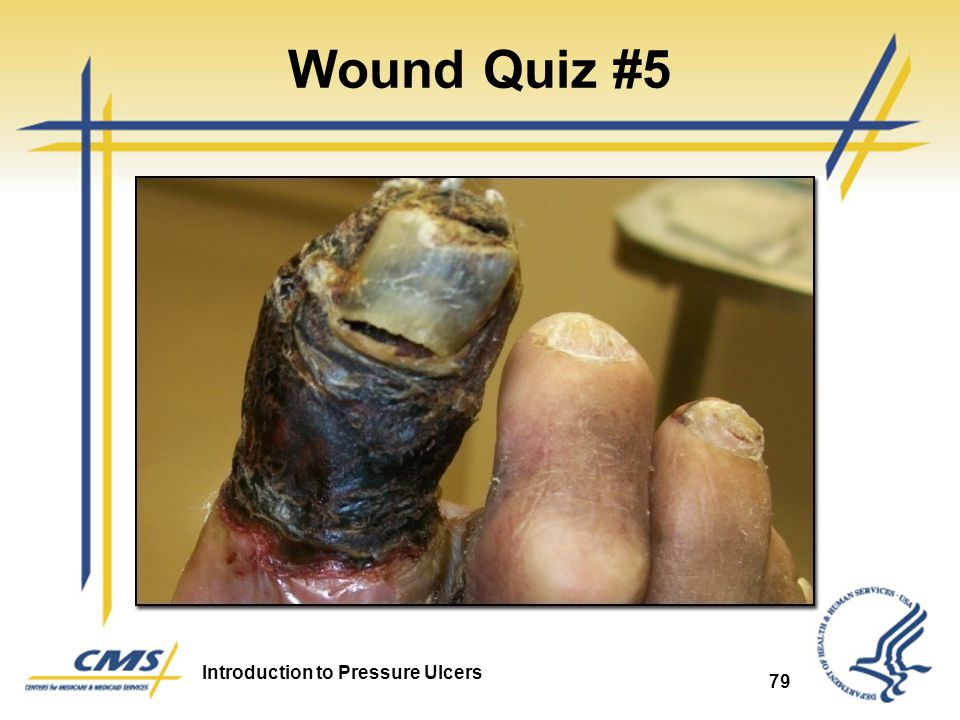 Wound Quiz #5 Arterial Ulcer 79 79