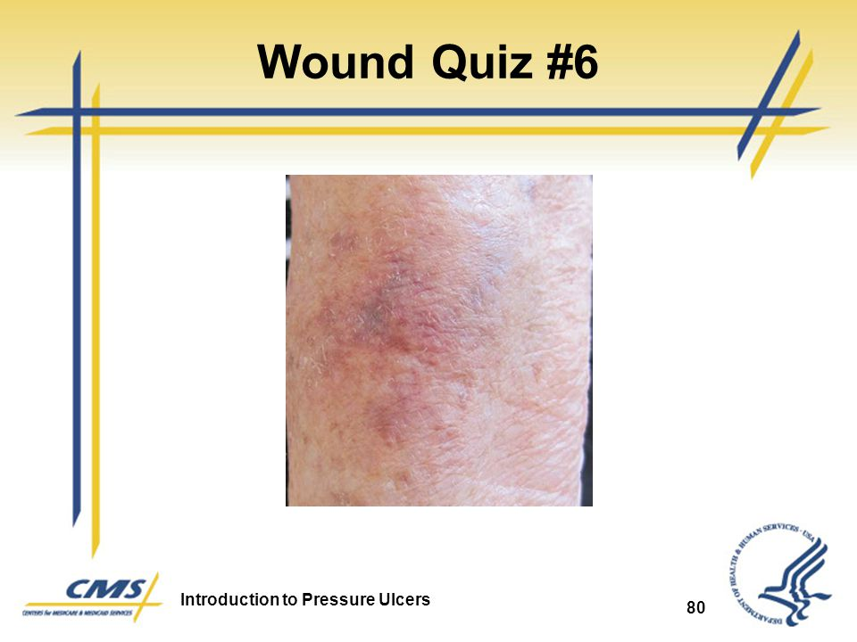 Wound Quiz #6 Arterial Ulcer 80 80