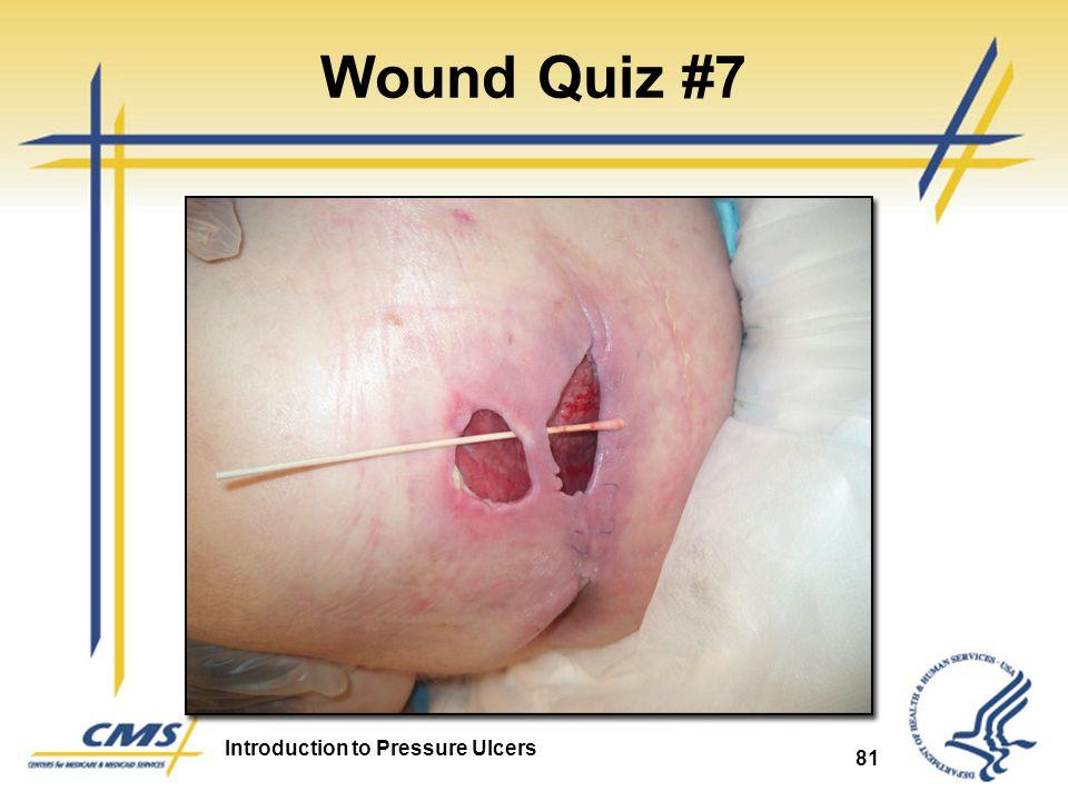Wound Quiz #7 Pressure Ulcer 81 81