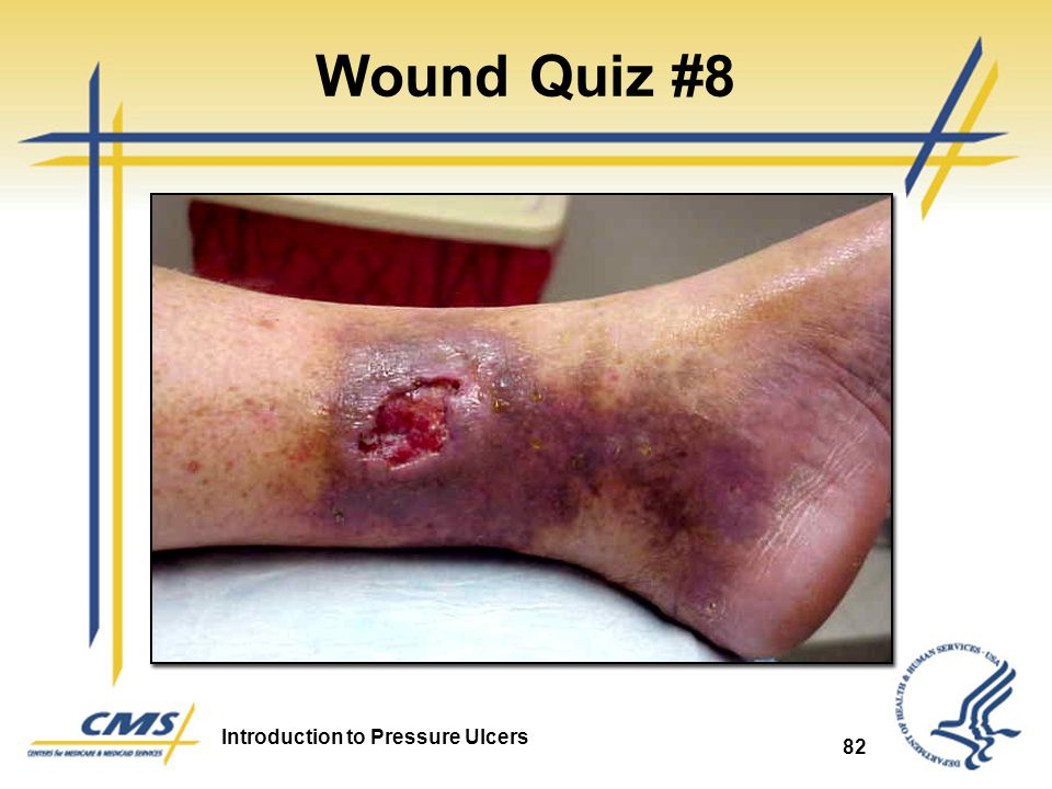 Wound Quiz #8 Venous Ulcer 82 82