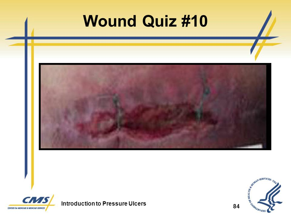 Wound Quiz #10 Skin Tear or Surgical Wound 84 84