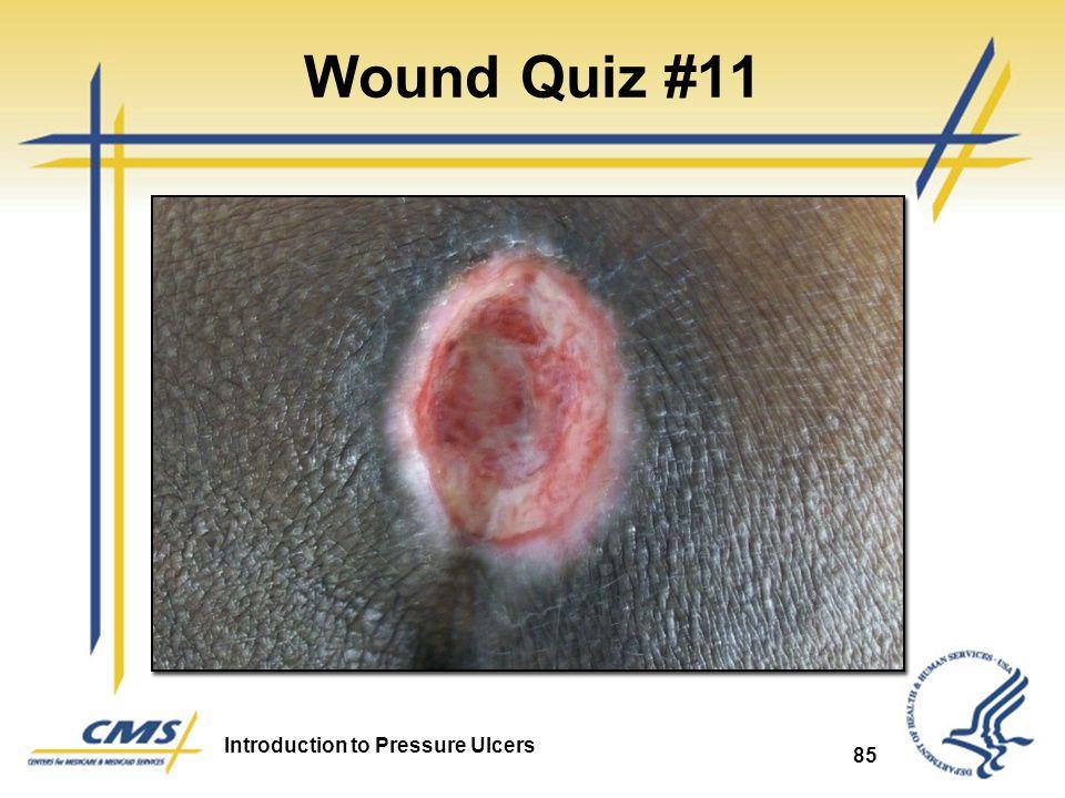 Wound Quiz #11 Pressure Ulcer 85 85