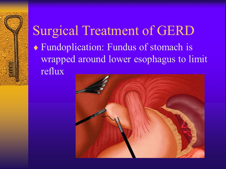 Surgical Treatment of GERD