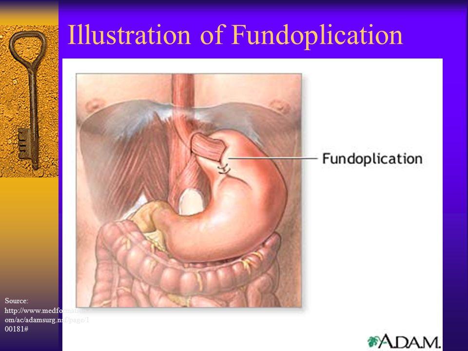 Illustration of Fundoplication