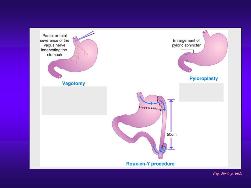 Gastric surgical procedures. (cont.)