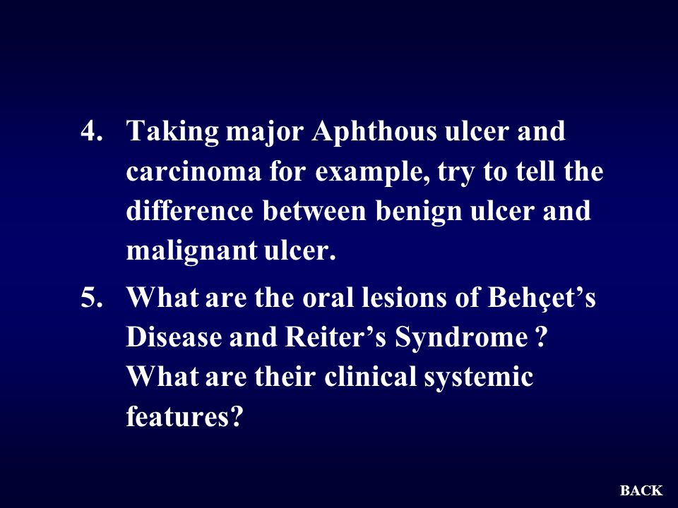 Taking major Aphthous ulcer and carcinoma for example, try to tell the difference between benign ulcer and malignant ulcer.