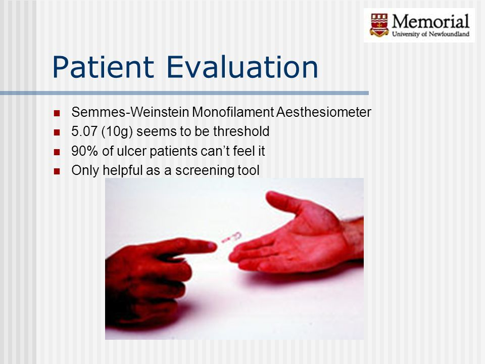 Patient Evaluation Semmes-Weinstein Monofilament Aesthesiometer