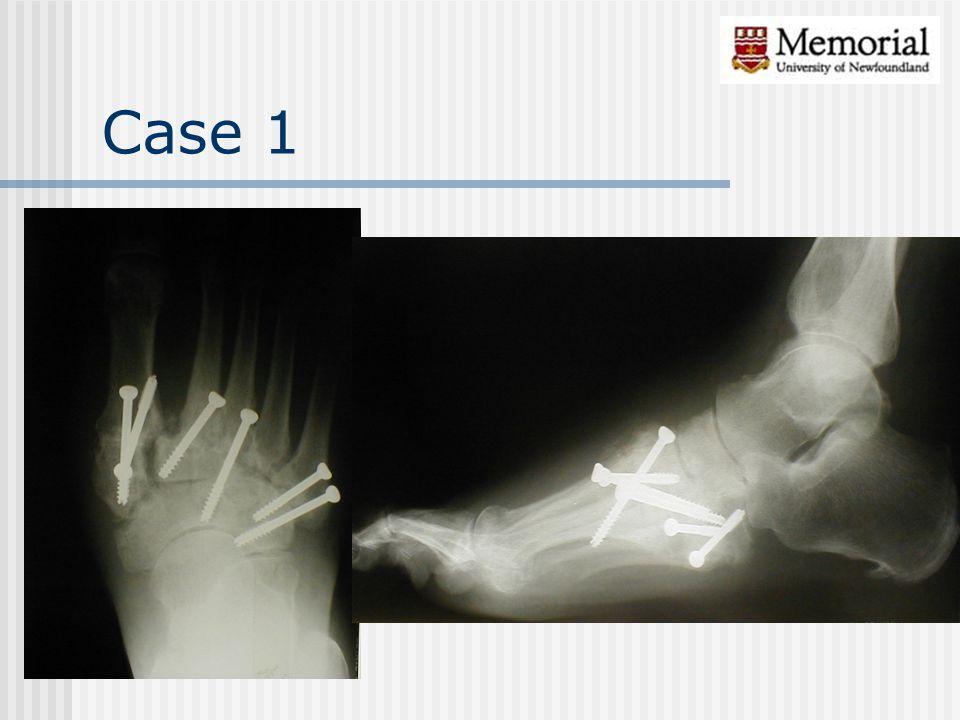 Case 1