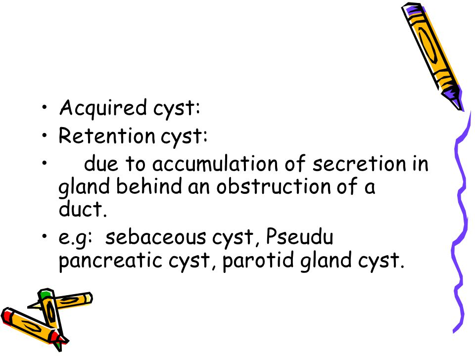 Acquired cyst: Retention cyst: due to accumulation of secretion in gland behind an obstruction of a duct.