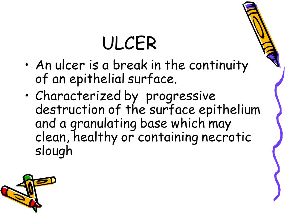 ULCER An ulcer is a break in the continuity of an epithelial surface.