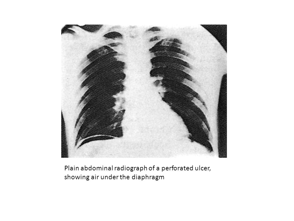 Plain abdominal radiograph of a perforated ulcer,