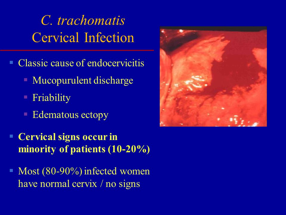 C. trachomatis Cervical Infection