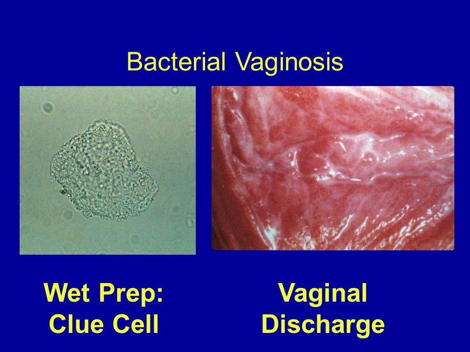 Bacterial Vaginosis Wet Prep: Clue Cell Vaginal Discharge