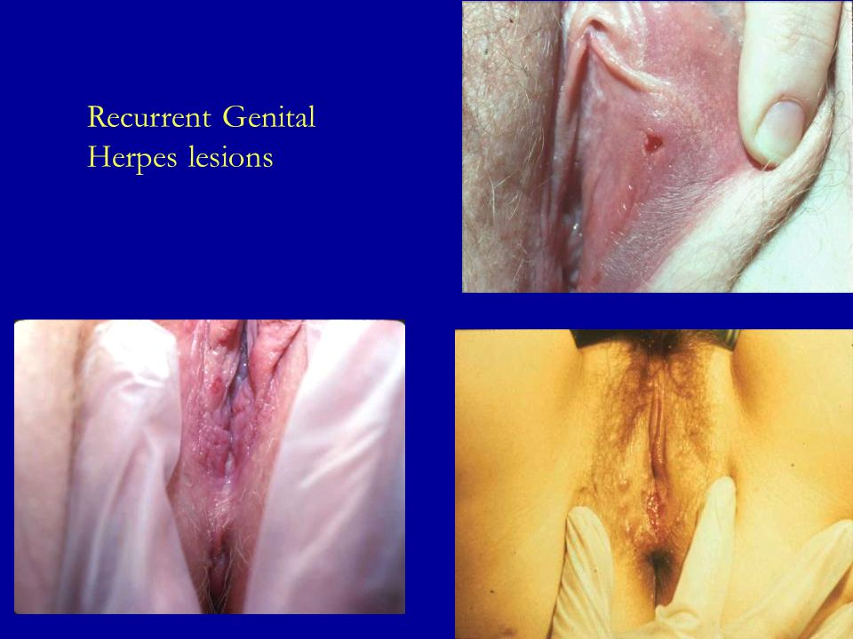 Recurrent Genital Herpes lesions