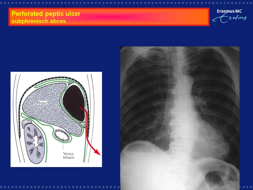 Perforated peptic ulcer subphrenisch abces