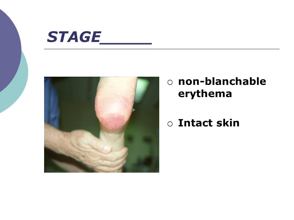 STAGE_____ non-blanchable erythema Intact skin