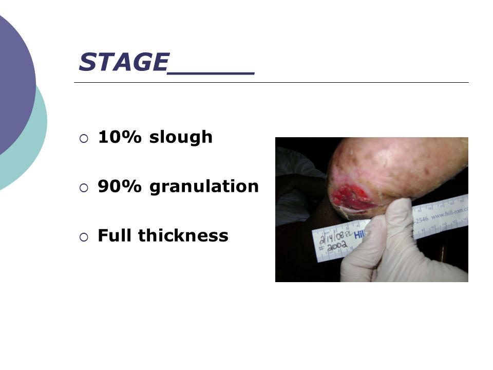 STAGE_____ 10% slough 90% granulation Full thickness