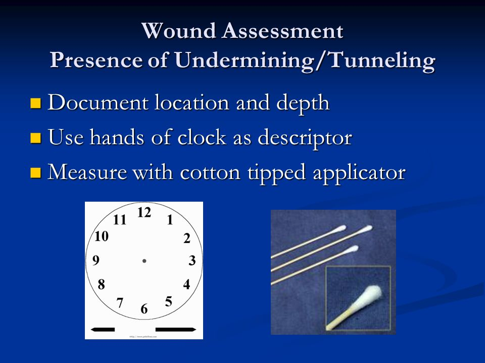 Wound Assessment Presence of Undermining/Tunneling