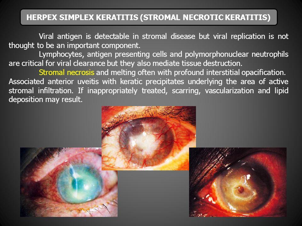 HERPEX SIMPLEX KERATITIS (STROMAL NECROTIC KERATITIS)