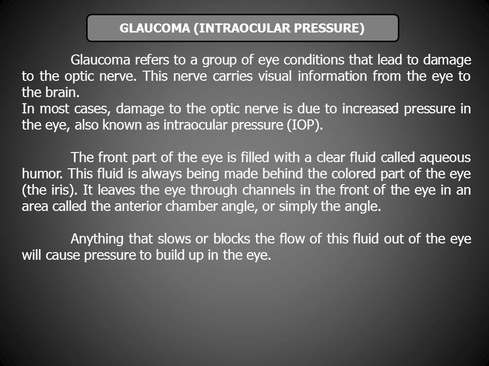 GLAUCOMA (INTRAOCULAR PRESSURE)
