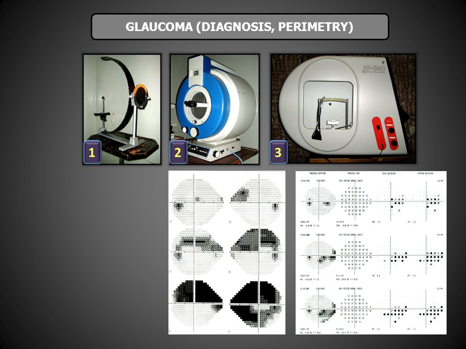 GLAUCOMA (DIAGNOSIS, PERIMETRY)