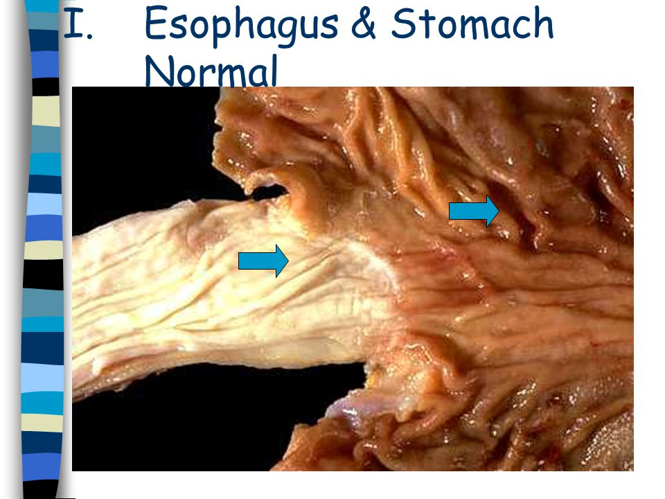Esophagus & Stomach Normal