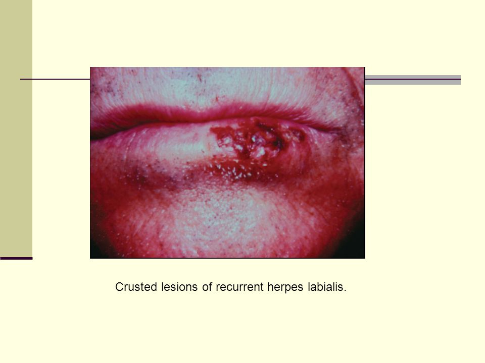 Crusted lesions of recurrent herpes labialis.