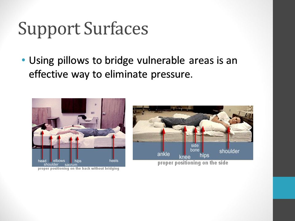 Support Surfaces Using pillows to bridge vulnerable areas is an effective way to eliminate pressure.