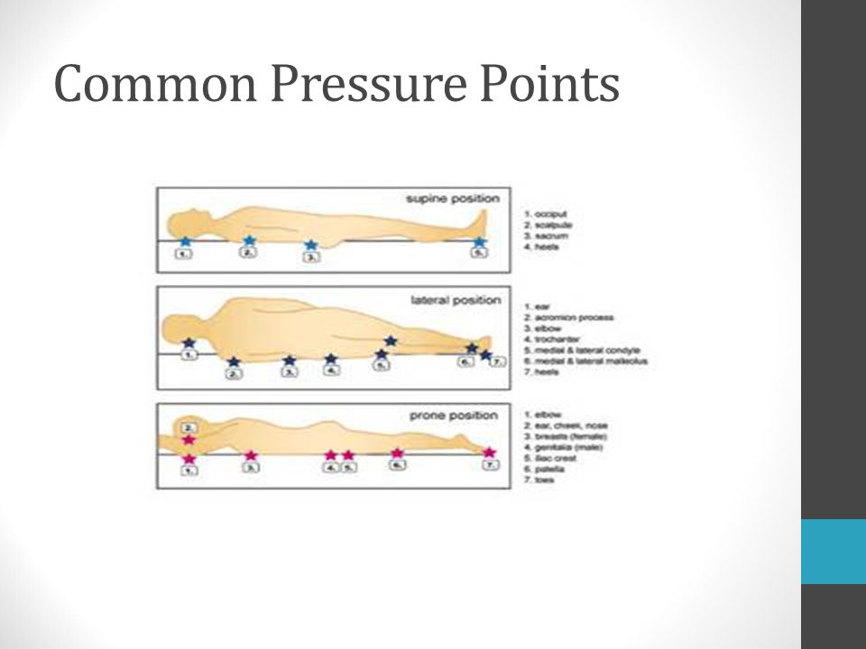 Common Pressure Points
