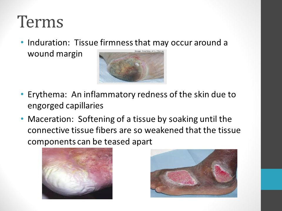 Terms Induration: Tissue firmness that may occur around a wound margin
